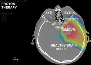 Proton Beam Cancer Treatment Brain Tumours Proton Therapy Center Cancer Treatment In