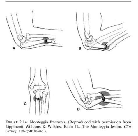 Tulang Tulangan Pressed Bone 6 Inci fraktur antebrakial distal link go
