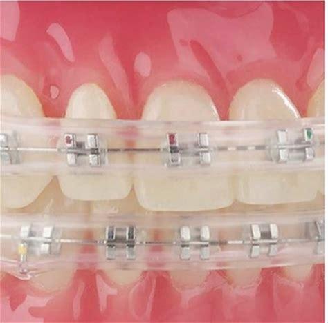 comfort dental braces comfort cover for dental braces