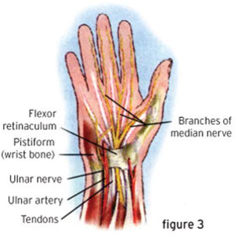 Similiar Wrist Pain Diagram Keywords