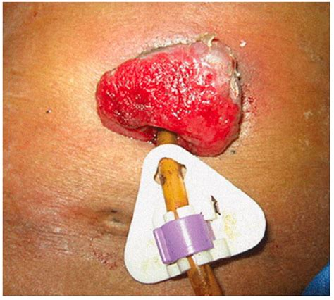 peg alimentazione percutaneous endoscopic gastrostomy associated