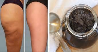 2 ingredients anti cellulite paste the magic cellulite