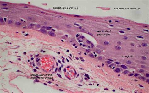 ocular pathology superior limbic keratoconjunctivitis