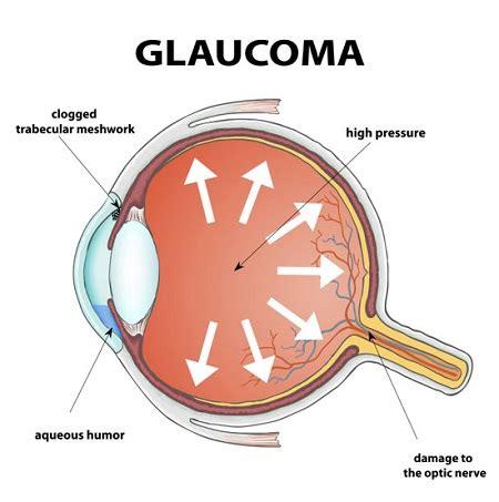glaucoma symptoms and treatment bumrungrad hospital thailand