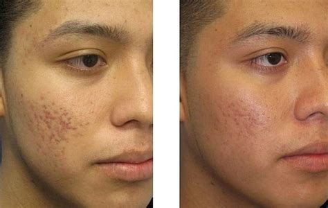 acne treatments nyc schweiger dermatology group