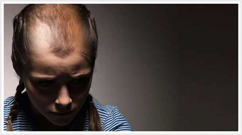 Thinning Hair Teenager | hair loss and hair thinning can happen to female teens
