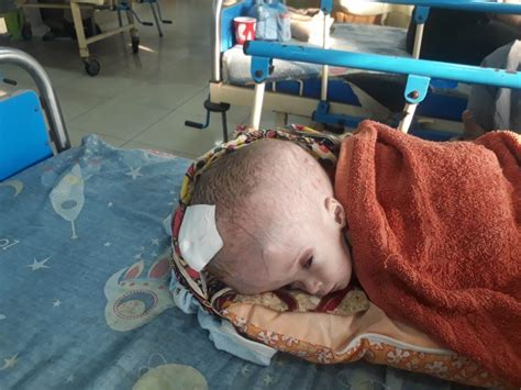 how pakistani make baby head pakistani baby with head almost the size of a football