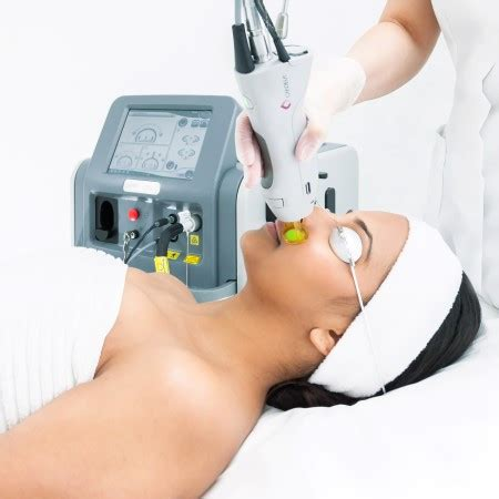 candela hair removal laser hair removal galway permanent make up beyond