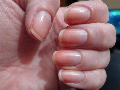 pale nail beds what your nails say about your health boldsky com