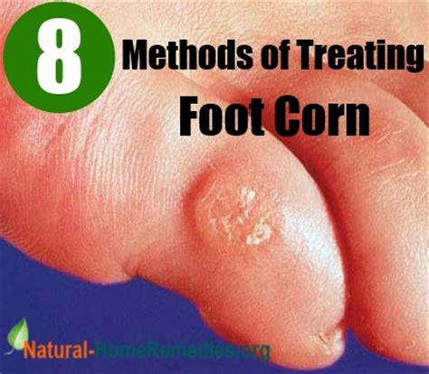 8 effective methods of treating foot corn at home home
