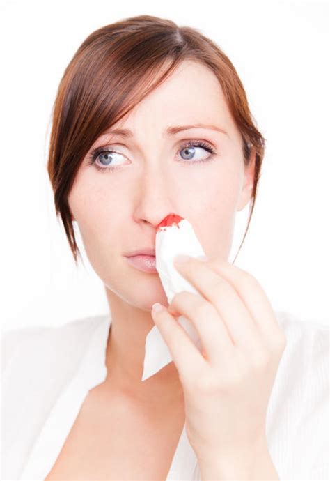 bloody nose bloody nose doctor insights on healthtap