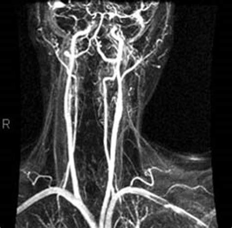 vasi cerebrali angio risonanza magnetica encefalo con contrasto o mezzo