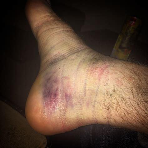 a to heel how to treat a heel bruise buyskateshoes skate news