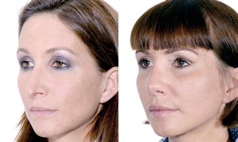im liegen nase zu revision stephan bessler nasal surgery clinic z 252 rich
