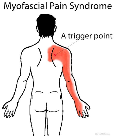 info mps it myofascial symptoms diagnosis treatment