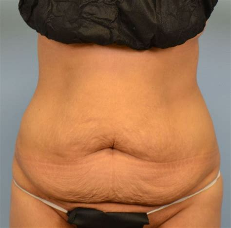 can you have a tummy tuck during c section can you have a tummy tuck during c section 28 images