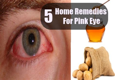 pink eye eye drops treatment