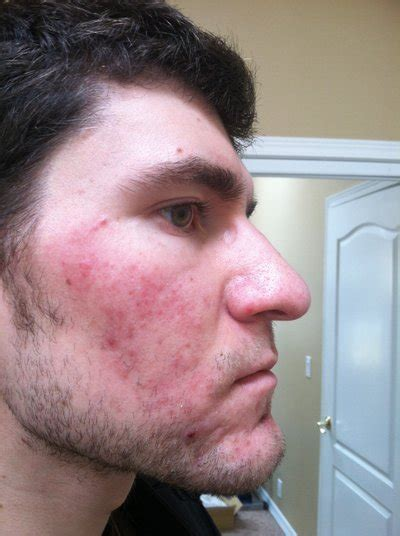 Regular Acne regular course of accutane for cystic acne and rosacea photo doctor answers tips
