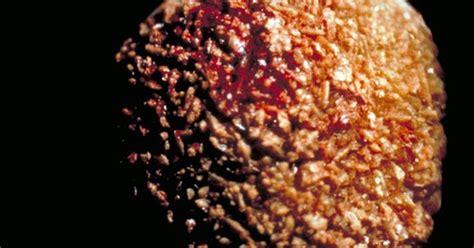 dak gejala asam urat tinggi dalam tubuh kita