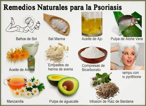 alopecia sus causas y remedios naturales salud naturalcom psoriasis cura tratamiento natural para la soriasis en