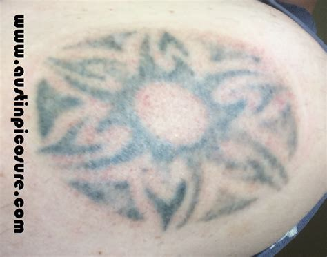 laser tattoo removal austin tx cupping therapy between laser removal treatments in