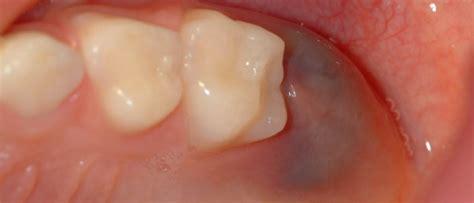 cuanto tarda en salir una muela juicio quistes dentales tipos y tratamiento cuidado dental