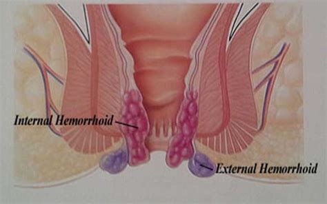 external hemorrhoid pain constant crowe insights