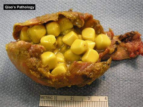 Yellow Stool After Gallbladder Removal by