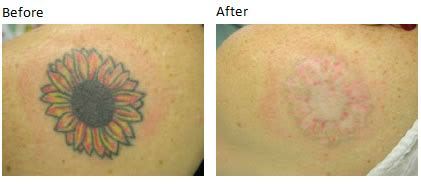 tattoo removal wales removal at within medi spa in cowbridge