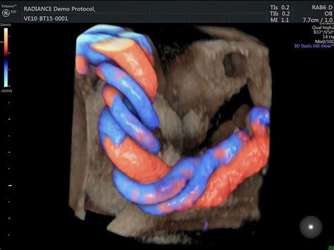 vasi cordone ombelicale ecografia morfologica centro diagnosi prenatale