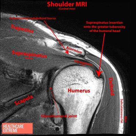 shoulder images shoulder impingement mri www imgkid the image kid