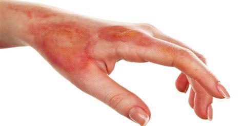 imagenes de uñas quemadas quemaduras tipos de quemaduras y primeros auxilios