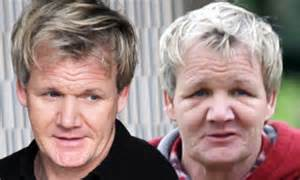 has sting had a hair transplant has sting had a hair transplant 42 celebrity men who are