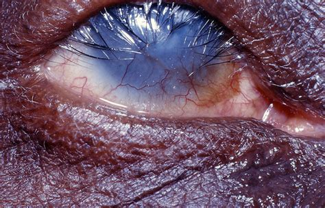 Chlamydia Blindness Why Is Trachoma Blinding Aboriginal Children When