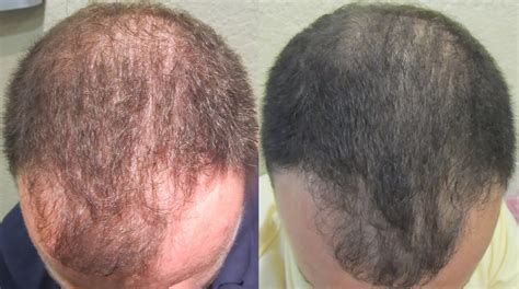 can platelet rich plasma stop hair loss and grow new hair prp for hair restoration southington ct