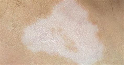 skin disease loss of pigment with hair loss skin disorders that cause pigment loss livestrong com