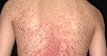 about health pityriasis rosea