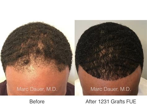in south africa hair transplant fue hair transplant in african american patient