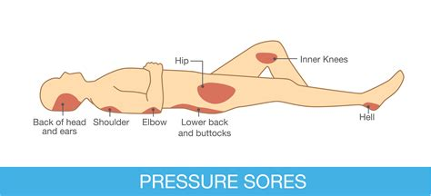 bed sore treatment bed sores homeremediesguide com