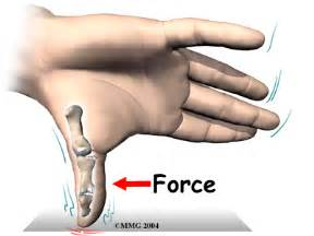 ulnar collateral ligament injuries of the thumb orthogate