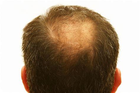 mengobati rambut rontok tanaman herbal berkhasiat