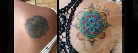 tattoo cover up after laser removal your get a cover up skin renew laser