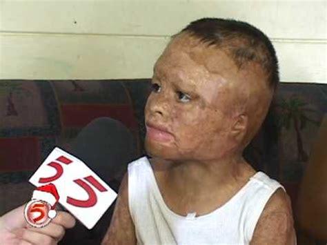 imagenes de niños quemados con cohetes sue 209 os de navidad para ni 209 os quemados mpg youtube