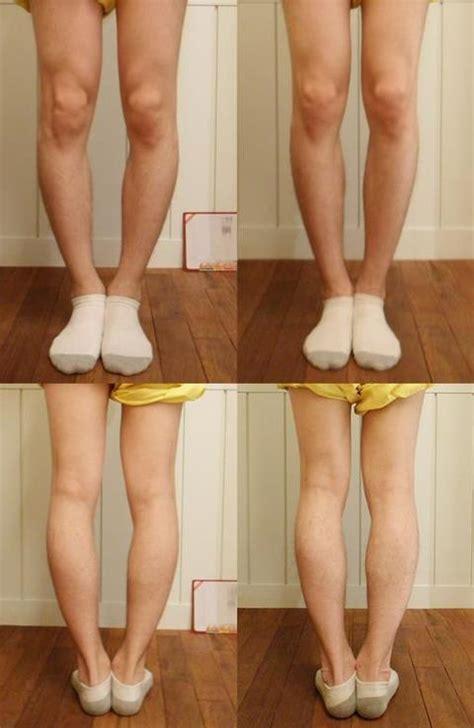 bow legged bowlegged