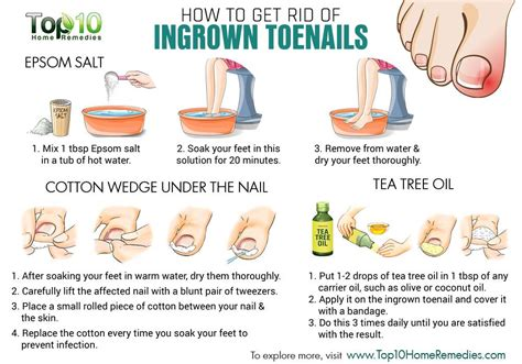 home remedies for ingrown toenails top 10 home remedies