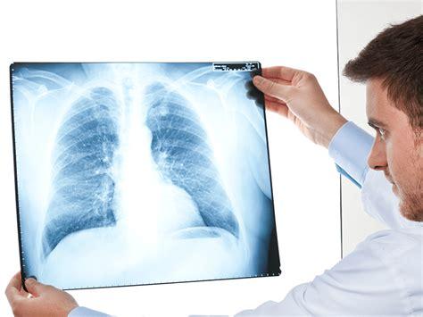imagenes medicas rayos x descubriendo los rayos x capital21