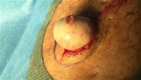 sebaceous cyst rupture epidermoid cysts linkedin
