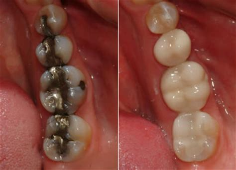 tooth colored fillings timbercrest dental center