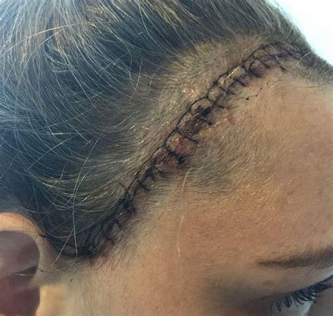 mal di testa tumore cervello quot ho sempre mal di testa colpa dello stress quot invece era