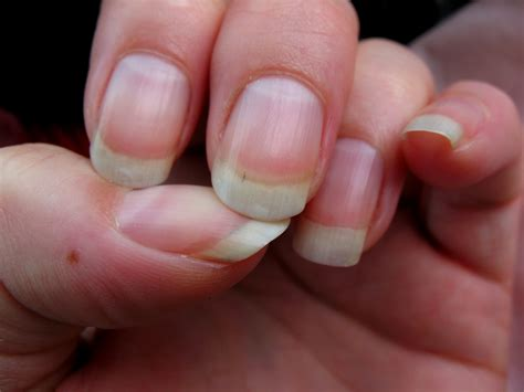 Hair Manicure what vitamins promote hair nail growth nations journal